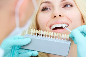 free denture consultation High Wycombe